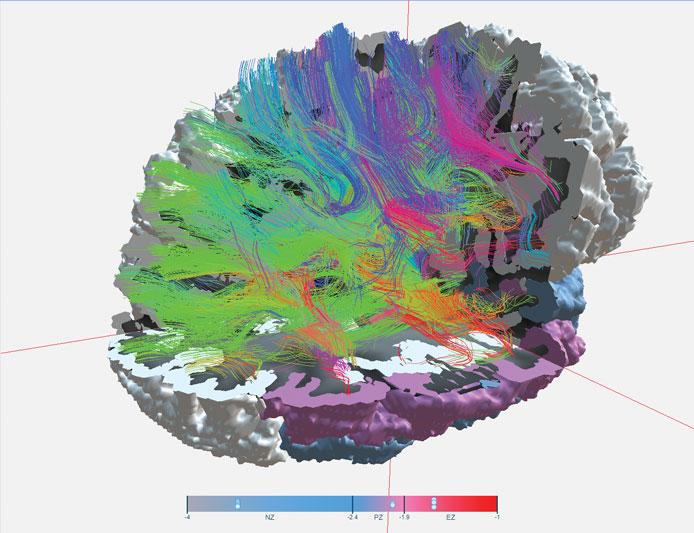 L'objectif du projet EPINOV est d'améliorer la prise en charge chirurgicale de l'épilepsie grâce à la modélisation virtuelle 3D du cerveau du patient. (Image © EPINOV)