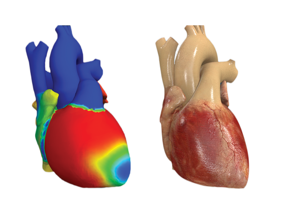 The Living Heart Project developed the first virtual heart model in 2014. (Image © Dassault Systèmes)