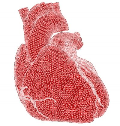 Finite element grid simulation used to investigate the structural interaction between transcatheter heart valve frame and native patient anatomy to ensure long-term structural durability and reliability. (Image © courtesy of Edwards Life Sciences)